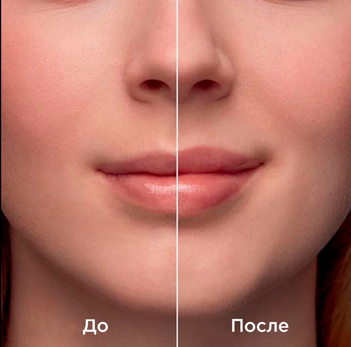 Belotero Lips Shape — результат процедуры ✔️ Лучшая цена | Filler-Shop