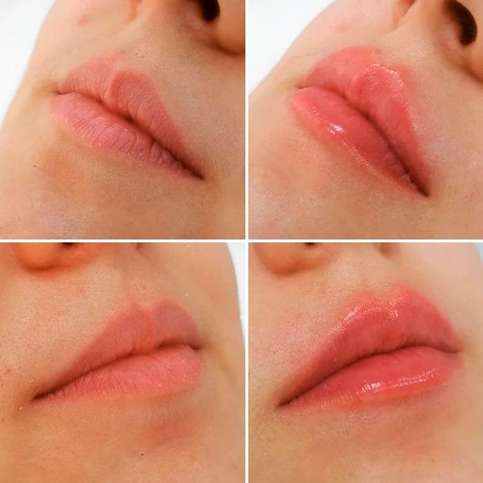 Belotero Lips Contour — результат процедуры ✔️ Лучшая цена | Filler-Shop