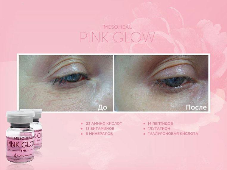 Mesoheal Pink Glow — состав и результат препарата ✔️ Лучшая цена | Filler-Shop