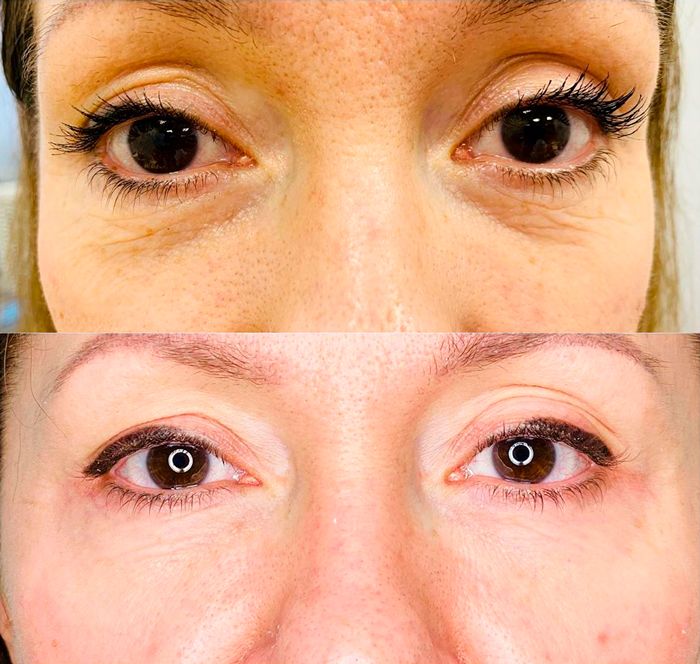 Meso Eye C71 — результат процедуры ✔️ Лучшая цена   Filler-Shop