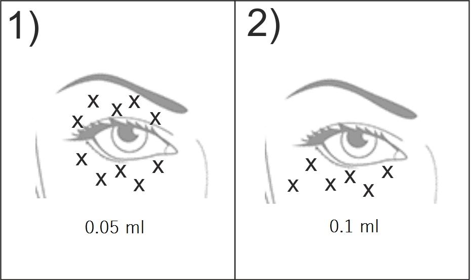 Meso Eye C71 — схема введения препарата ✔️ Лучшая цена   Filler-Shop