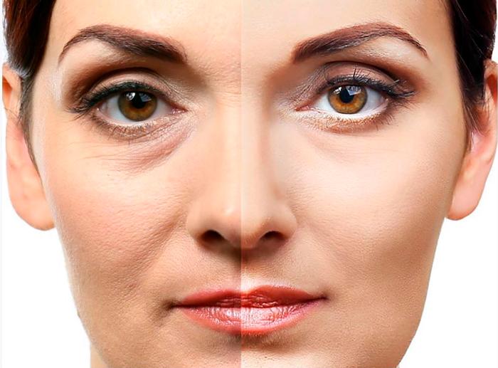 SkinFill Basic — результат процедуры ✔️ Лучшая цена | Filler-Shop
