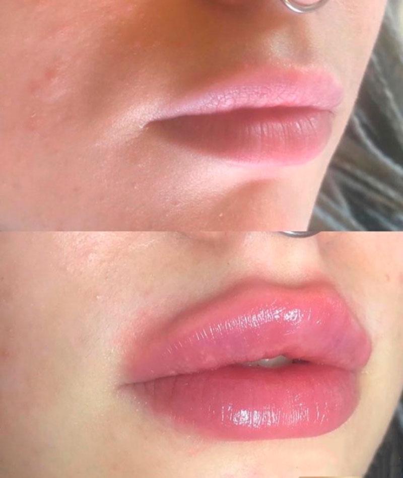 Revanesse Kiss — результат процедуры ✔️ Лучшая цена | Filler-Shop