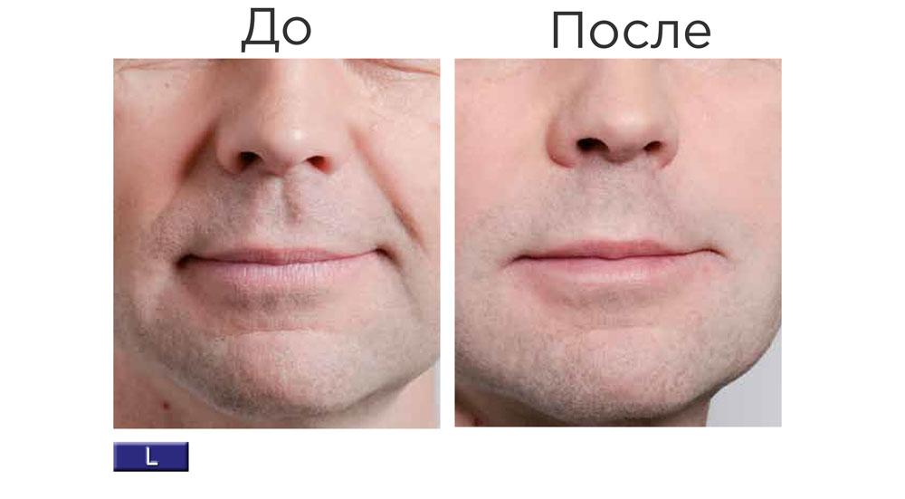 Stylage L Lidocaine — результат процедуры ✔️ Лучшая цена | Filler-Shop