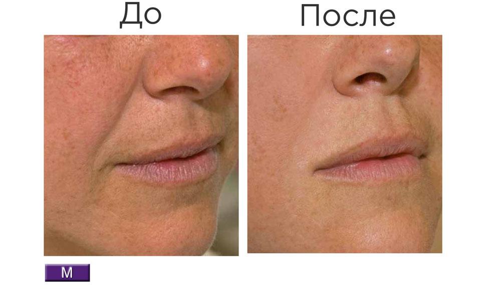 Stylage M Lidocaine — результат процедуры ✔️️ Лучшая цена | Filler-Shop