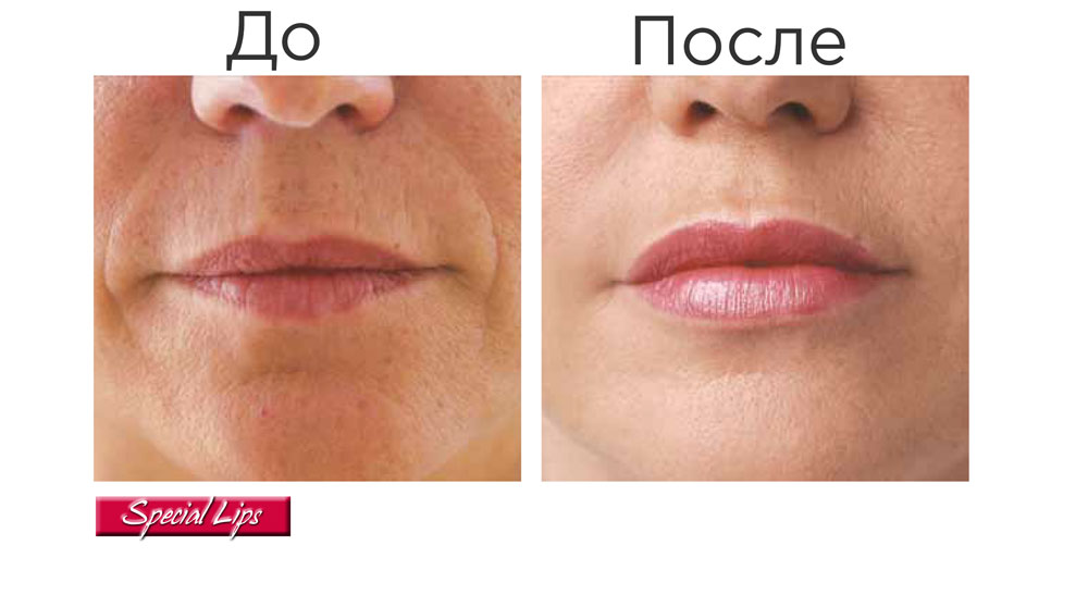 Stylage Special Lips — результат процедуры ✔️ Лучшая цена | Filler-Shop