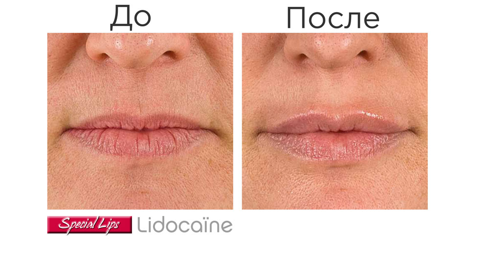 Stylage Special Lips Lidocaine — результат процедуры ✔️️ Лучшая цена | Filler-Shop