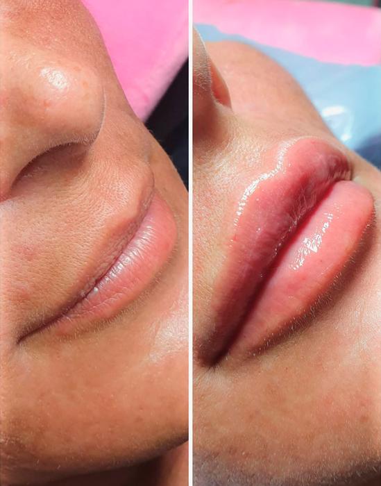 Teosyal Kiss — результат процедуры   Filler-Shop