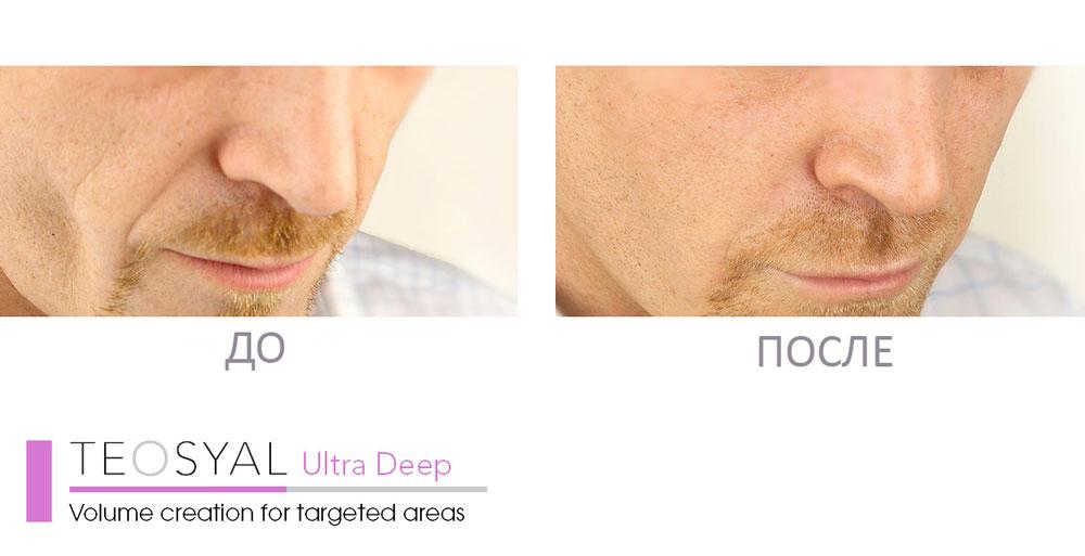 Teosyal Ultra Deep результат процедуры ✔️ Лучшая цена | Filler-Shop